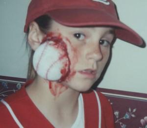 11-injured baseball player