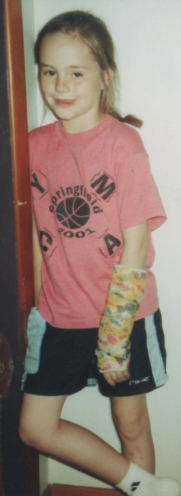 broken-arm-3